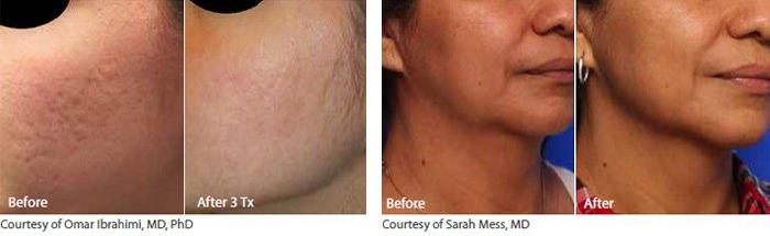 Infini Acne Scars Wrinkles Texture Neck Laxity